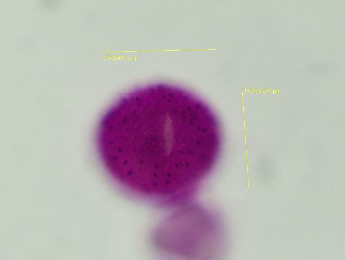 or...equatorial view of a honeysuckle pollen grain