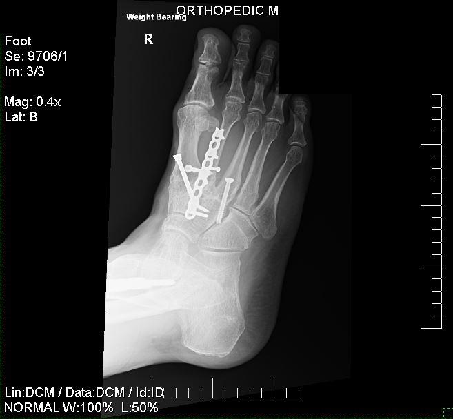 Foot5